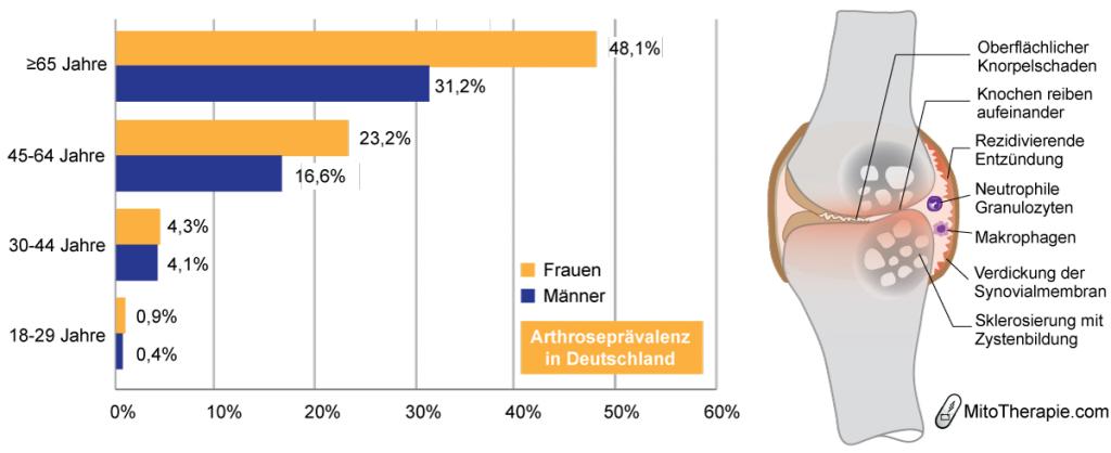 Arthrose tritt mit zunehmendem Alter vermehrt auf. Entzündungsreaktionen tragen zur Pathogenese bei.