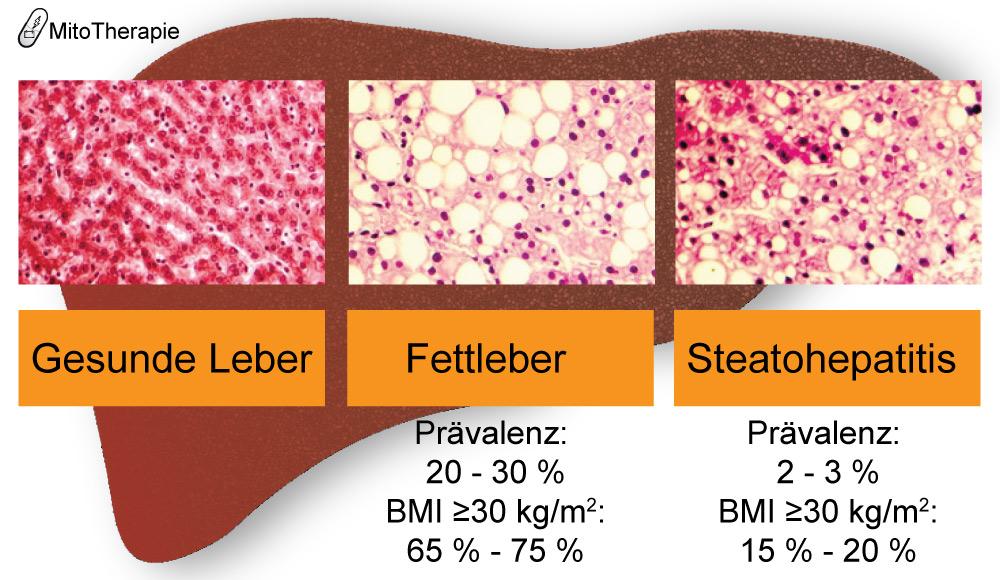 Das Bild zeigt degenerative Veränderungen der Leber