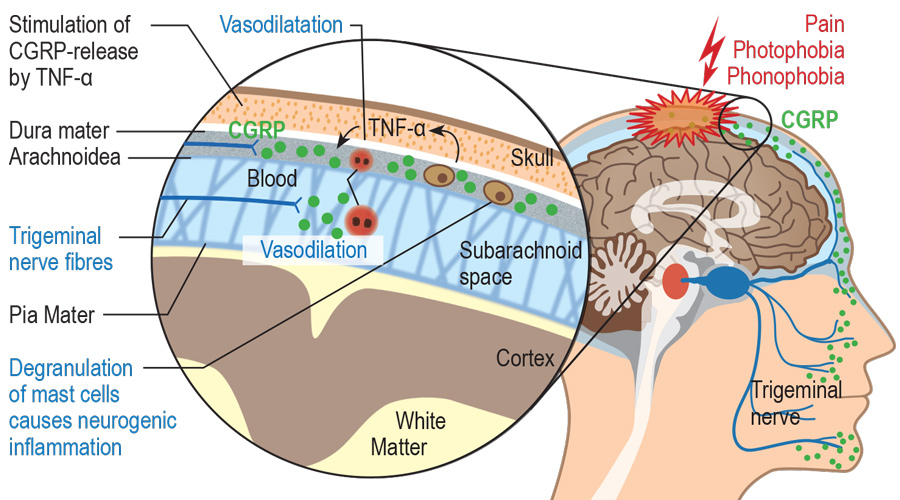 Mechanism by which migraine is caused